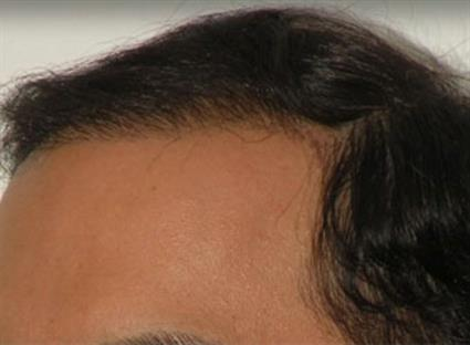 Hair Restoration After