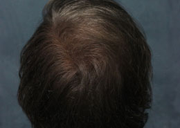 Hair Transplant After Photo